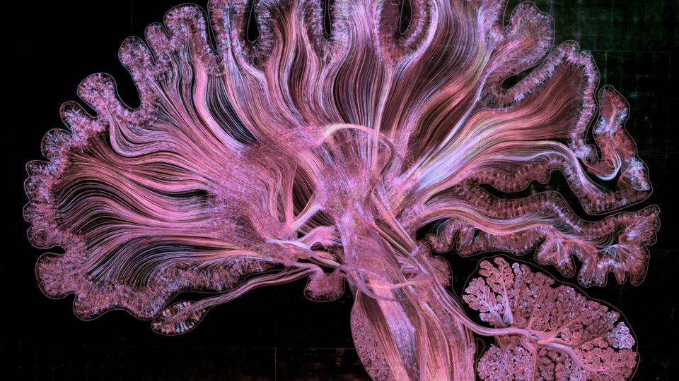 SELF REFLECTED- Illuminating the brain through art and science